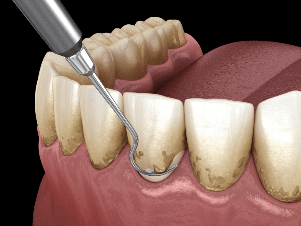 scaling for gum recession