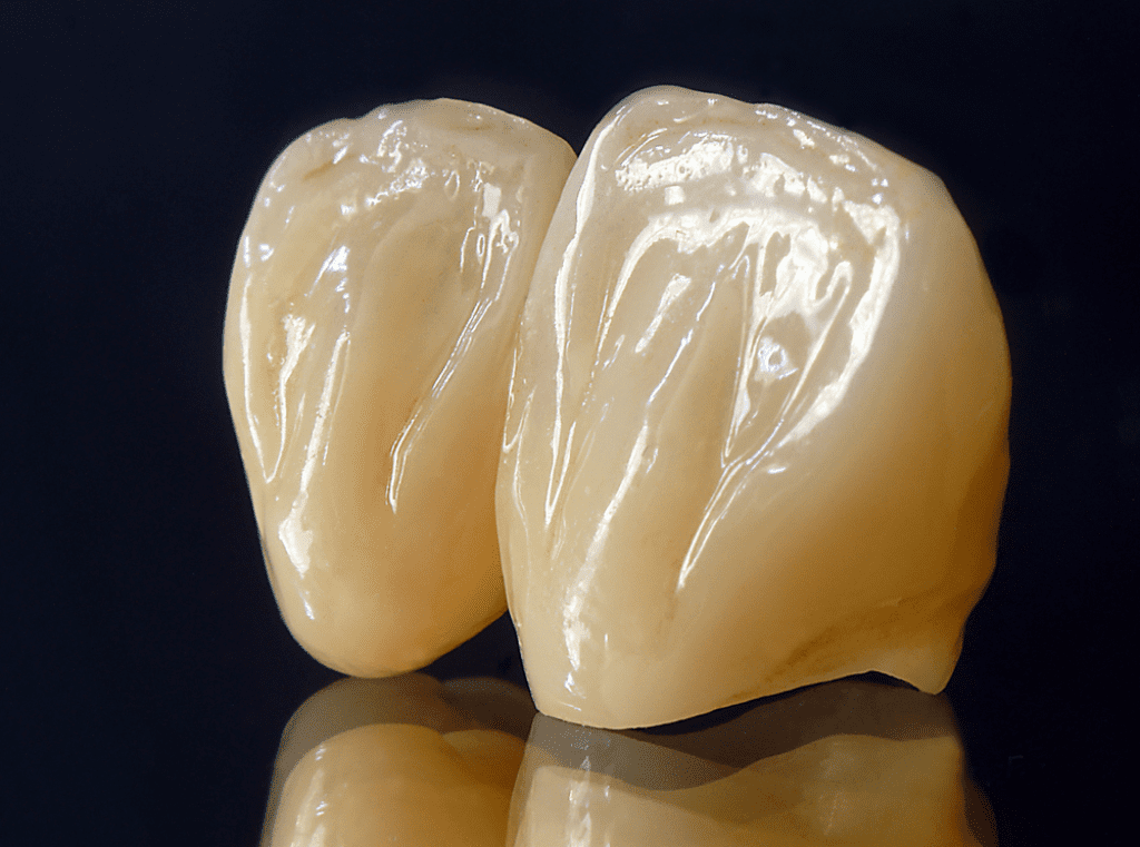What is Zirconia Crown, Its Positive & Negative Aspects, and
