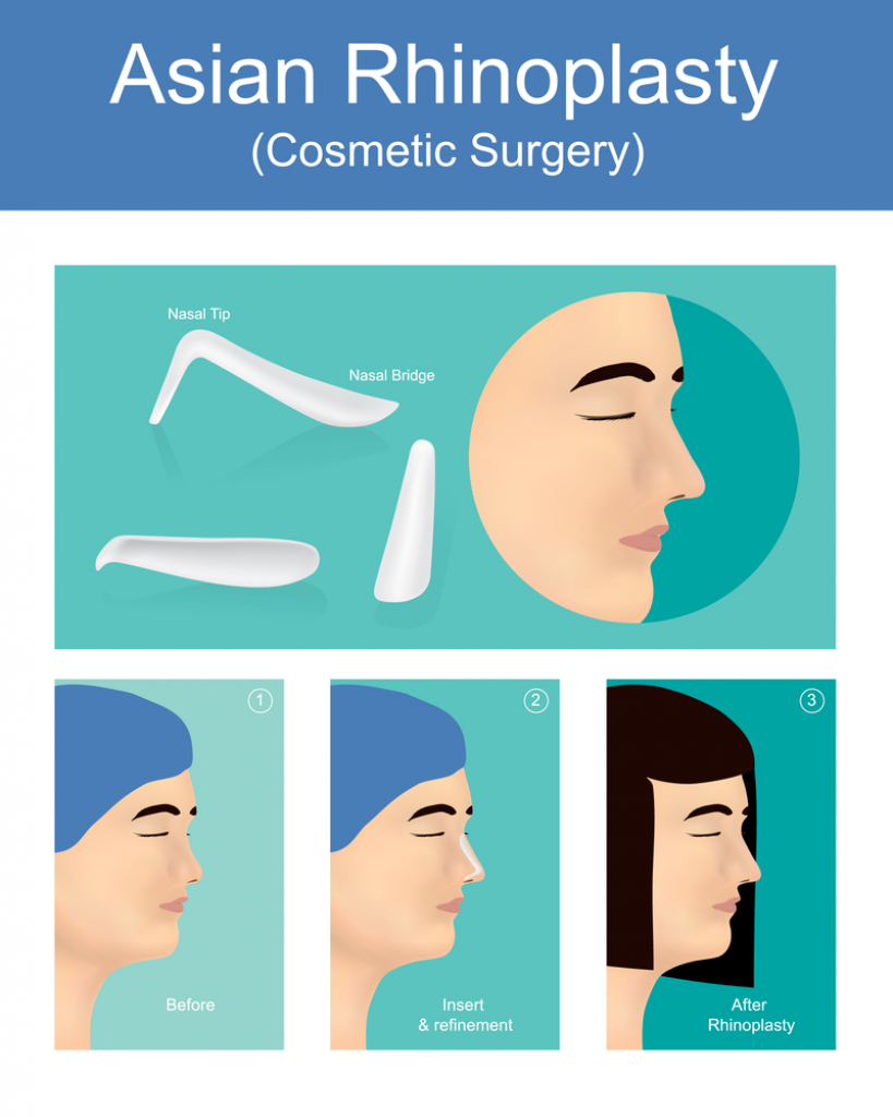 WHat is Tip Rhinoplasty, its Type, Need and the Complications