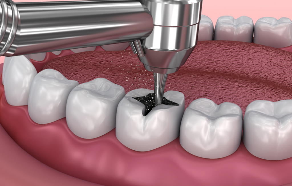 Temporary tooth filling removal
