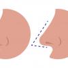 Tip Rhenoplasty