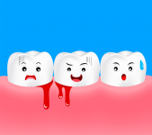 What is Bleeding Gums? Its Causes, Diagnosis and Treatment?