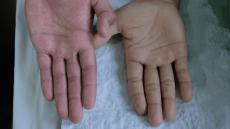 Anemia Causes, Symptoms, Diagnosis, & Management