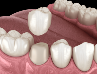 What is Dental Crowns? Its Indication, Types and Cost?