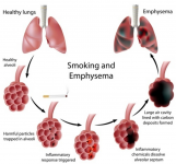 Smoking and its Harmful Effects