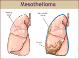 What is Mesothelioma, its Symptoms, Diagnosis and Treatment?