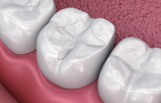 What is Temporary Tooth Filling: Reasons, Material Used and Cost?